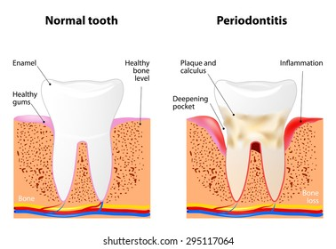 Periodontitis is a inflammatory diseases affecting the periodontium, the tissues that surround and support the teeth