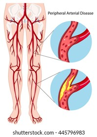 Peripheral arterial disease diagram illustration