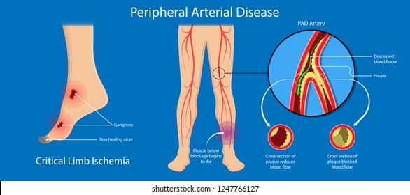 Peripheral artery disease ankle brachial index ABI test limb ischemia diagnosis vascular ABPI blockage
