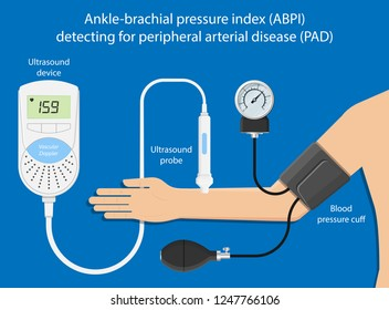 Peripheral artery disease ankle-brachial index (ABI) test limb ischemia