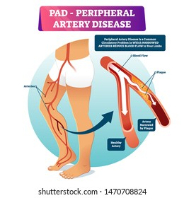 Peripheral artery disease PAD vector illustration. Labeled medical structure scheme with healthy or narrowed plaque in vessels comparison. Anatomical damaged peripheral organ and blocked blood example