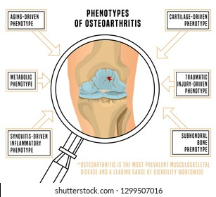 Phenotypes of osteoarthritis of the knee. Editable vector illustration in realistic style isolated on white background. Medical, healthcare, physiology concept Scientific infographic Horizontal poster