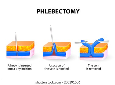 Phlebectomy helps to remove clusters of varicose veins. When veins are too large for sclerotherapy, they can be removed through tiny incisions.