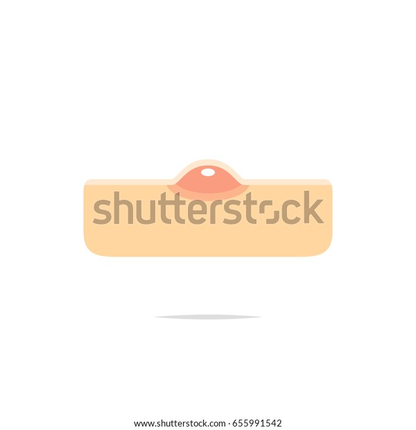 Märkänäppylä