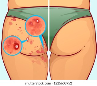 Pimples on the buttocks, before-after. Vector illustration