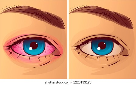 Pink eye, before-after. Vector illustration