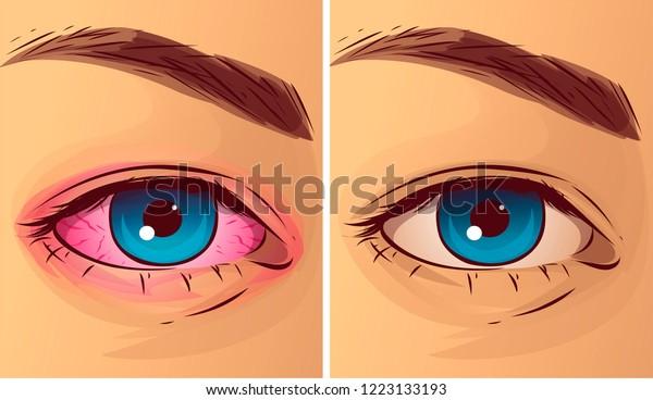 Pink eye, before-after. Vector illustration