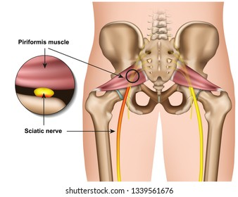 piriformis syndrome 3d medical vector illustration on white background