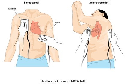 Placement of defibrillator electrode paddles to perform cardioversion on a patient with cardiac arrhythmia
