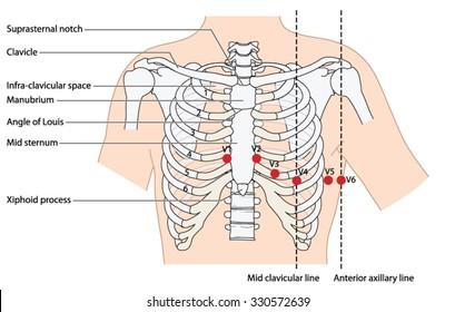 Placement of ecg ekg leads showing the ribs and sternum, the mid clavicular line and the anterior axillary line.