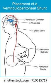 placement of a ventriculoperitoneal shunt