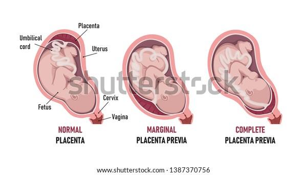 Placenta Previa Normal Partial Marginal Lowlying Stock ...