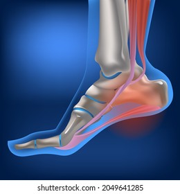 Plantar fasciitis, plantar fasciosis. inflammatory and degenerative changes in plantar fascia. Pain during walking. Vector 3D rendering of the human foot in flexed position