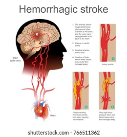 Plaque causing thrombotic stroke torn artery causing intra cerebral. Very high blood return and blood leaks out of from damaged artery. Illustration human bod