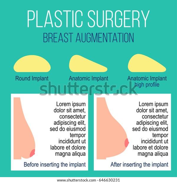 Plastic Breast Surgery Vector Illustration Types Stock Vector