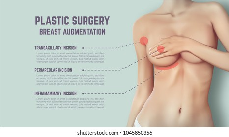 Plastic surgery of breast implants. Illustration shows incision methods.