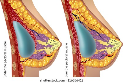 Plastic surgery of breast implants. Vector illustration