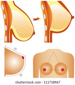 Plastic surgery of breast. Tits correction. Plastic surgery shows breast correction methods on white background.