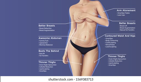 plastic surgery illustration with beautiful woman in black panties and list of surgeries