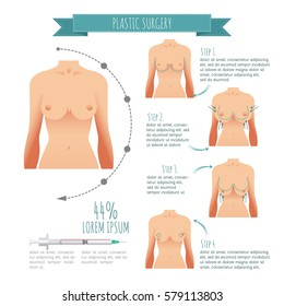 Plastic surgery illustrations. Breast augmentation, breast lift