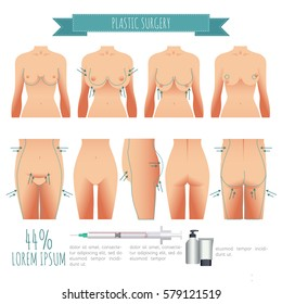 Plastic surgery illustrations. breast lift, lipofilling, abdominoplasty for your design