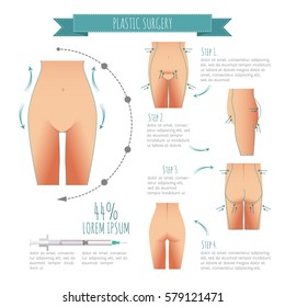 Plastic surgery illustrations. liposuction, lipofilling, abdominoplasty for your design