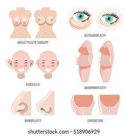 Plastic surgery set. Before ans after surgery example. vector illustrations of otoplasty; blepharoplasty; rhinoplasty; liposuction; abdominoplasty and breast surgery.