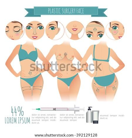 Plastic Surgery Vector Infographics Rhinoplasty Lumps Stock Vector