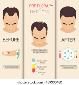 Platelet rich plasma injection procedure. PRP therapy process for a man. Male alopecia treatment infographics. Hair growth stimulation. Vector illustration.