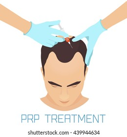 Platelet rich plasma injection procedure for men. PRP therapy process. Male alopecia treatment infographics. Hair growth stimulation. Vector illustration.
