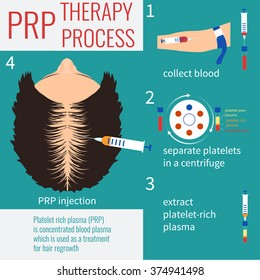 Platelet rich plasma injection. PRP therapy process. Alopecia treatment infographics.  Meso therapy and hair transplantation and growth stimulation. Vector illustration.