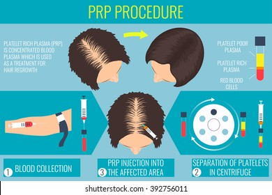 Platelet rich plasma injection. PRP therapy process. Female alopecia treatment infographics. Meso therapy and hair growth stimulation. Vector illustration.
