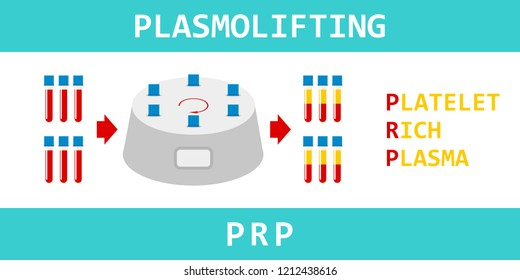 Platelet rich plasma. Plasmolifting, modern method of treatment of PRP. Test tube with blood and centrifuge. Vector illustration.