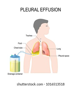 Pleural effusion. Diagram showing human silhouette with highlighted lungs, fluid buildup in the pleura, Chest Tube, and Drainage container.