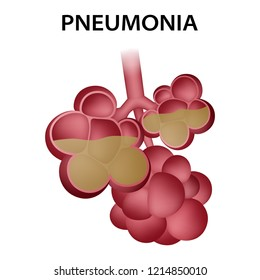 Pneumonia alveoli icon. Realistic illustration of pneumonia alveoli vector icon for web design isolated on white background