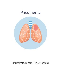 Pneumonia disease diagram a difference of healthy and damaged lungs vector illustration isolated on white background. Respiratory system symbol for medical and science use.