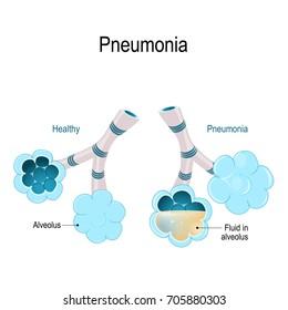 Pneumonia. Healthy alveoli and alveolus with pneumonia. Illustration shows normal and infected alveoli.