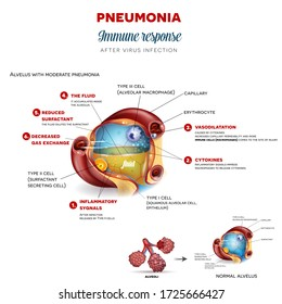 Pneumonia immune response step by step after virus infection, detailed alveolus anatomy illustration