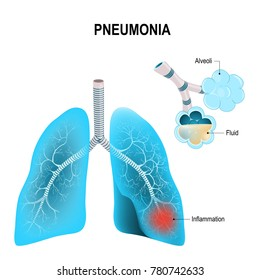 Pneumonia. Normal and inflammatory condition of the lung, and inflamed alveoli with fluid.