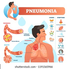 Pneumonia vector illustration. Labeled diagram with causes and symptoms. Medical closeup and isolated lung and respiratory system structure. Sneezing and cough reason.