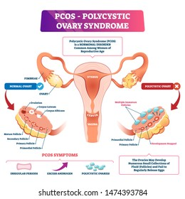Polycystic ovary syndrome or PCOS vector illustration. Labeled internal reproductive disease comparison scheme with healthy and sick female organs. Set of anatomical symptoms due to elevated androgens