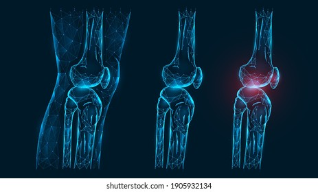 Polygonal vector illustration thigh and knee joint side view. Disease, pain, and inflammation of the knee joint. Low poly model of a healthy and injured human knee on a dark blue background