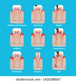 Popular teeth diseases icons in flat design, vector medical illustration. Dental problems infographic elements isolated. Healthy and unhealthy teeth, tooth decay, pulpitis, periodontitis, calculus.