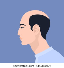 Portrait of a man in profile. Baldness. Alopecia. Vector Flat Illustration