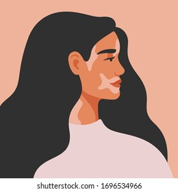 Portrait of an young woman with vitiligo in profile. Avatar of young girl with pigmentation on the skin. Vector illustration