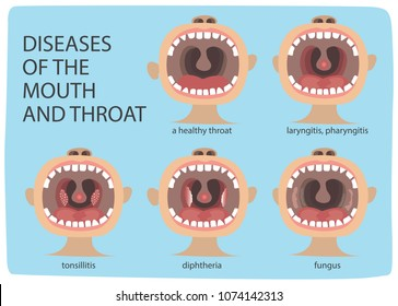 Poster Infographics illustration of a healthy throat difference from tonsillitis