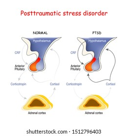 Posttraumatic stress disorder. Adrenal cortex, Anterior Pituitary and Hypothalamus. Regions of the brain associated with stress and PTSD. Endocrine Aspects: hypothalamic-pituitary-adrenal axis