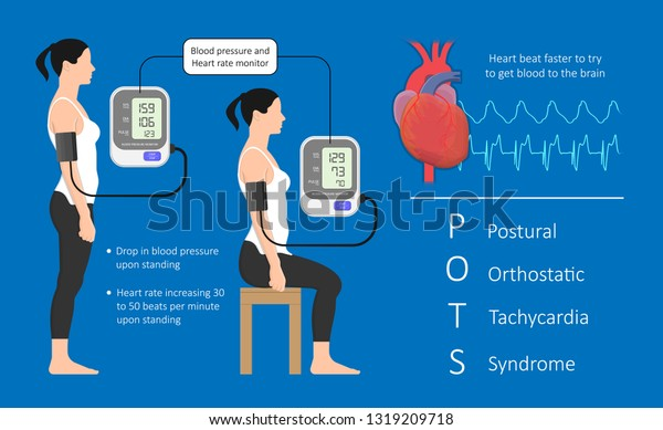 Postural Orthostatic Tachycardia Syndrome Pots Intolerance