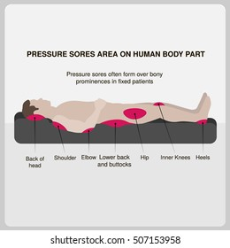 Pressure sores area on human body part. Vector illustration.