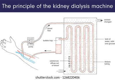 The principle of the kidney dialysis machine